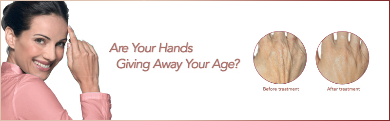 radiesse-hand-rejuvenation-fillers
