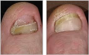 Laser Nail Fungus Treatment Weston