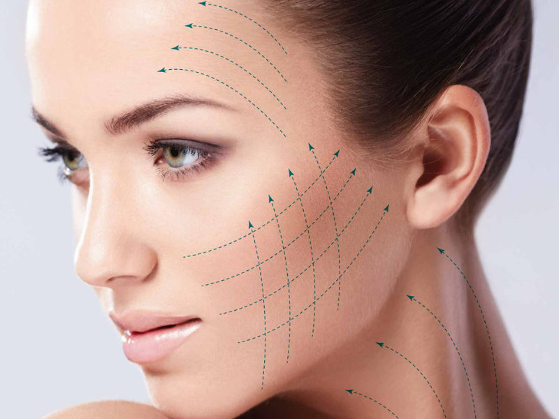 PDO THREAD FACELIFT PROCEDURE