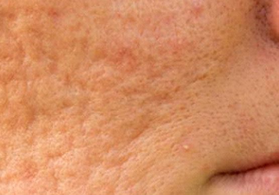 Skin Texture & Scarring