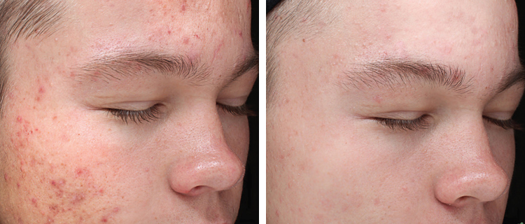 Medical Grade Peel in Weston