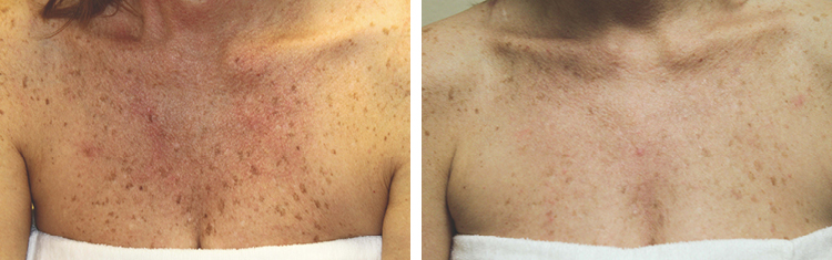 Medical Grade Peel For chest